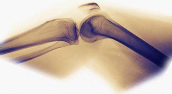 лечение и профилактика суставов