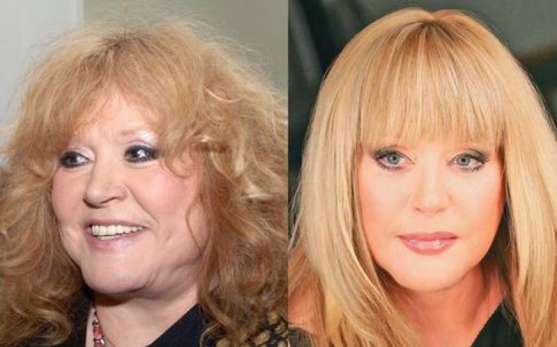 пугачева до и после похудения фото